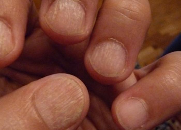 Деформация ногтей на левой руке