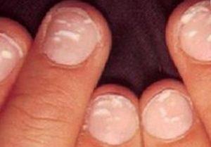 белые пятна на ногтях рук