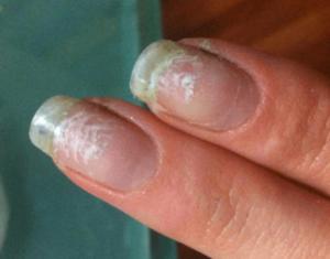 пятна с отлойками на ногтях