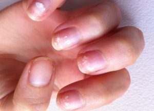 слоящиеся ногти с отслойками