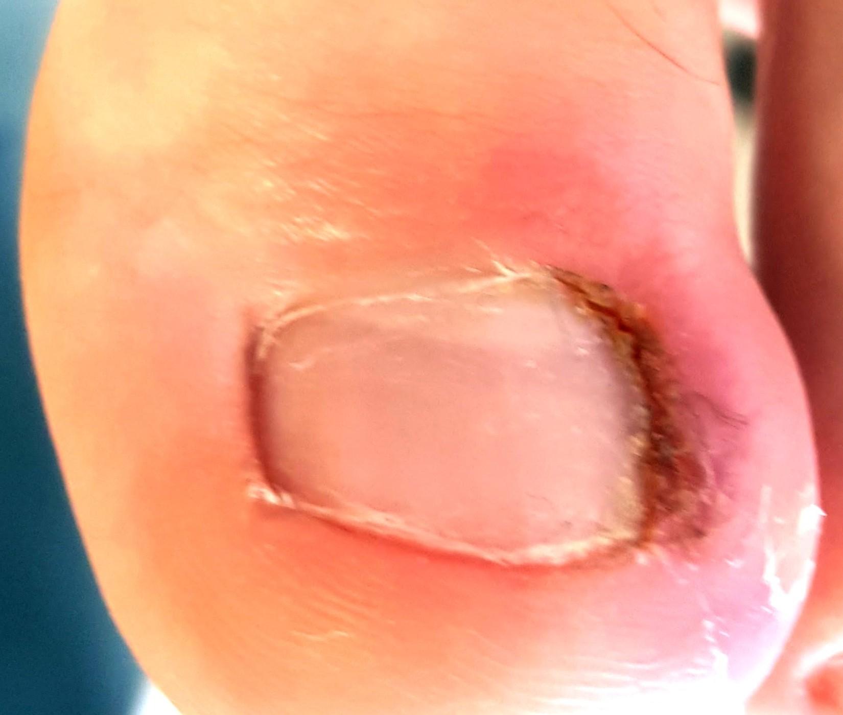 Ногти врезаются в кожу на ногах