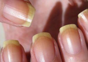 желтые ногти от использования цветного лака