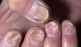 ногти после Химиотеррапии