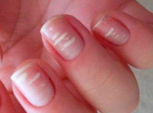 лейконихия на ногтях