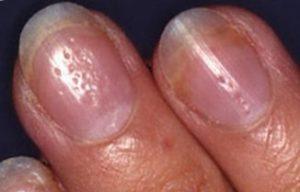 ямки на ногтях
