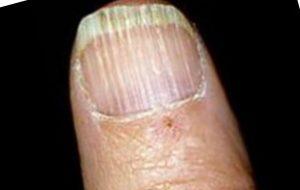 поперечные борозды на ногтях