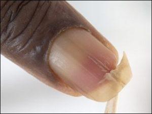 слабые тонкие ногти