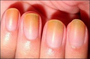 пожелтевшие ногти после нанесения красного лака