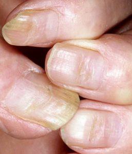 Борозды Бо Рейля на ногтях