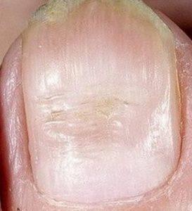 Борозды Бо Реййля на большом пальце ноги