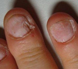 дистрофия детских ногтей