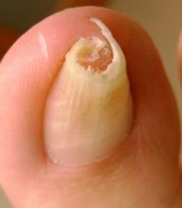 деформация ногтя