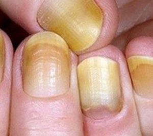 дисхромия - ногти поменяли цвет