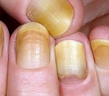 Как удалить грибок из ногтей
