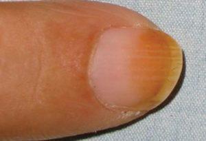 дисхромия цвет ногтя различается