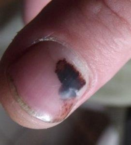 удар ногтя лечение