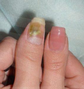 под наращенным ногтем грибок