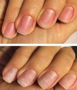 лечебная процедура для ногтей