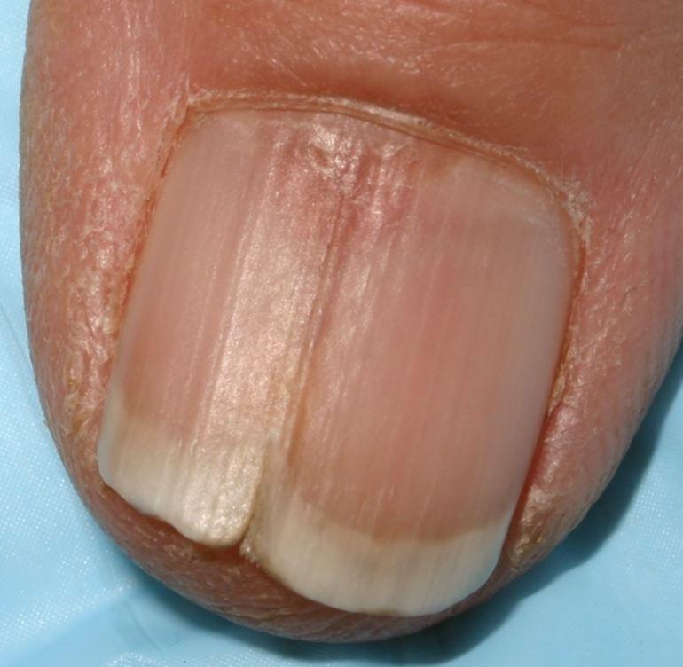 Биоптрон грибок ногтей