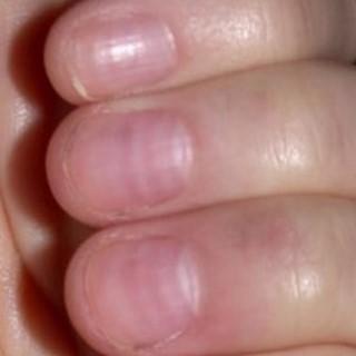 Гематома ногтя на руке лечение