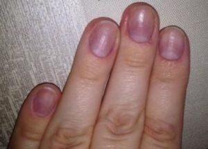 запечатывание ногтей до процедуры