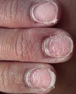 не правильно снятые искусственные ногти