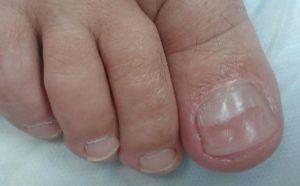 Онихощизис ногтей