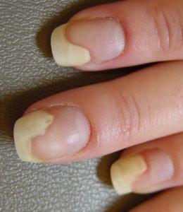 Онихолизис на среднем пальце