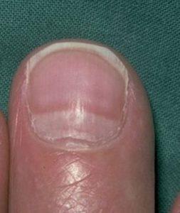 онихошизис расслоение ногтя