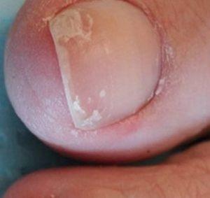 Отслоение ногтя, начальная стадия
