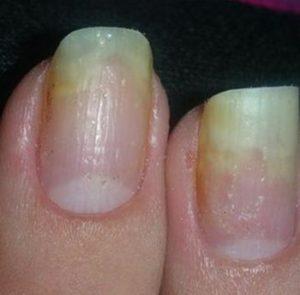 отслоение ногтя-онихолизис