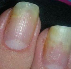 отслоение натурального ногтя