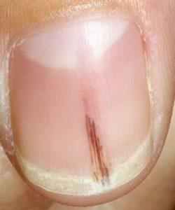 полоса вдоль ногтя