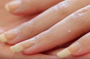 восковое запечатывание ногтй