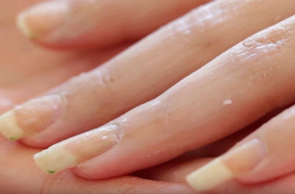Грибок на коже лечение препараты