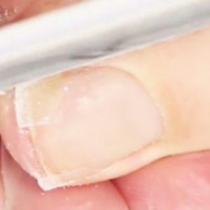 спиливание ногтя зараженного грибком