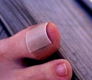 удаление ногтя с помощью химии
