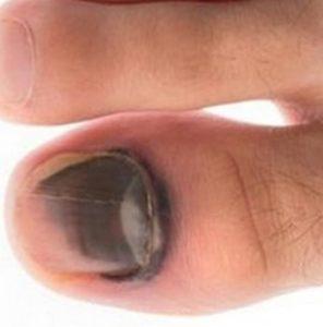 гематома на ушибленном пальце