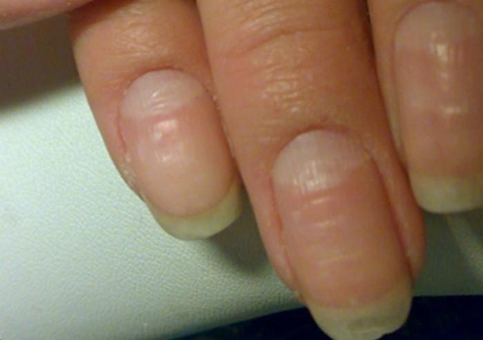 Волнистые ногти на больших пальцах 36