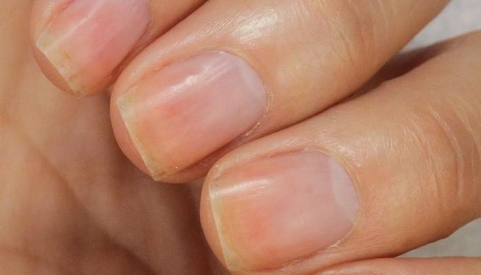 истонченные ногти