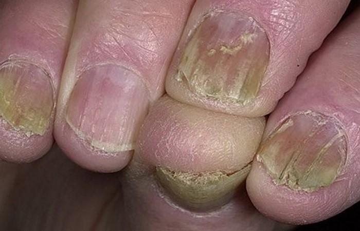 Волнистые ногти на больших пальцах 38