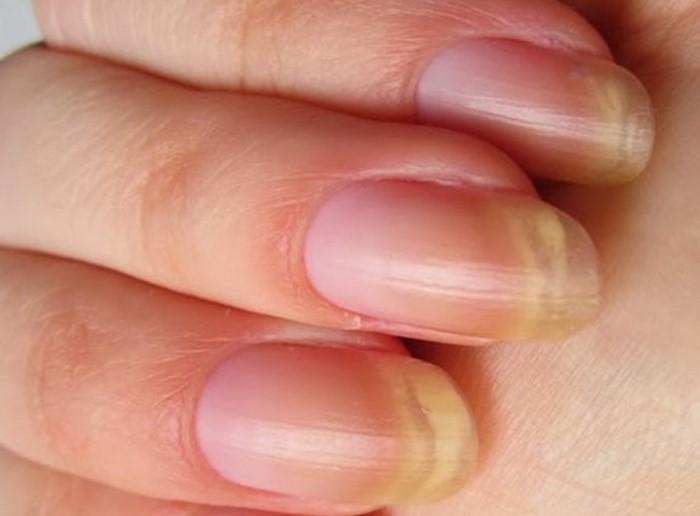 желтые-ногти-отбеливание
