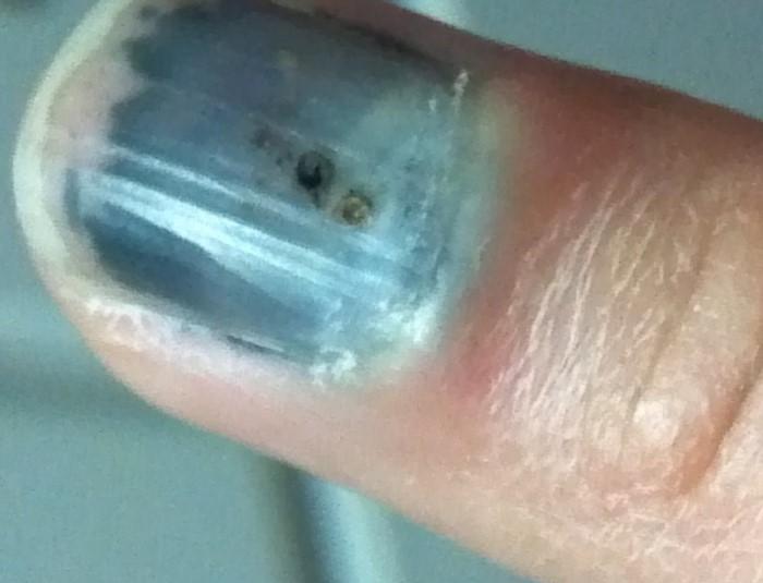 Ушиб ногтя на ноге фото