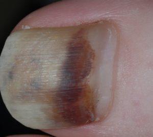 палец после ушиба