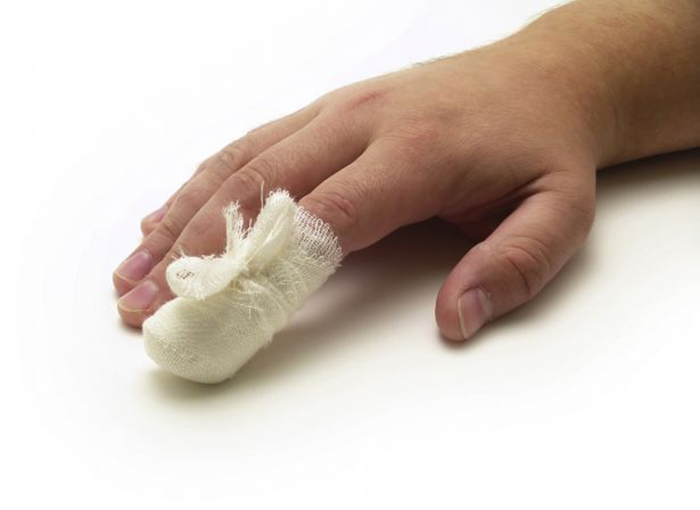 Повязка на пальце