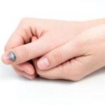 Темное пятно на ногте